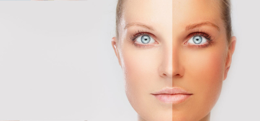 Natural Ways to Protect From Sun Damage